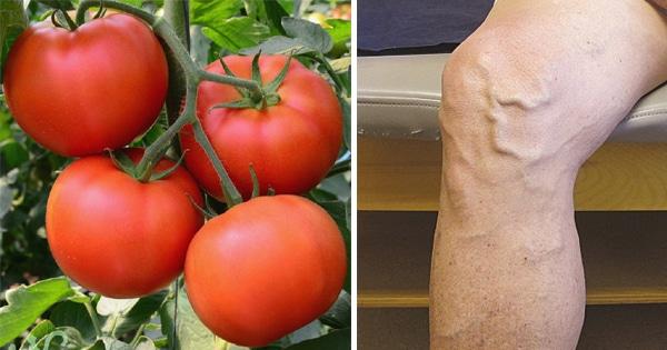 Lấy quả cà chua đắp lên chỗ suy giãn tĩnh mạch sau 2 tuần sau sẽ 'lặn dần' rồi biến mất, đáng thử